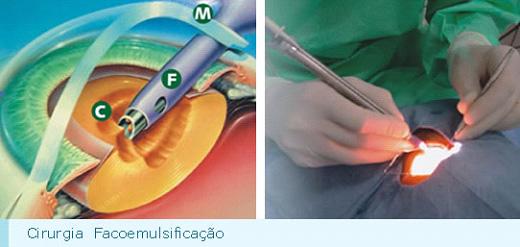 instituto-de-olhos-limongi_cirurgia-de-catarata