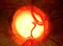 IOL-IMGS-Correcao-Visual-a-laser