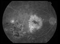 IOL-tomografia-edema01