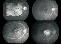 IOL - IMGS -Angiofluoresceinografia