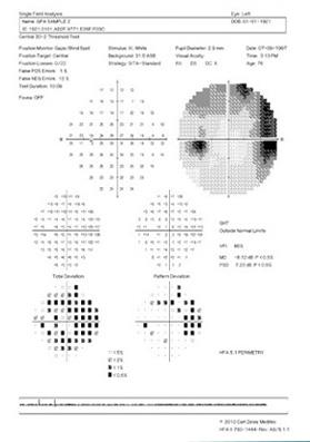instituto-de-olhos_campo-visual-a-laser