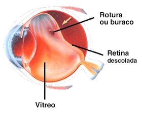 instituto-de-olhos_cirurgia-de-retina01