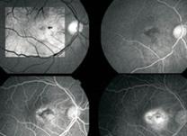 tb-instituto-de-olhos-limongi_Angiofluoresceinografia