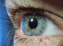 IOL - Blog - Tratamento para diabetes e glaucoma- Fotocoagulação a laser