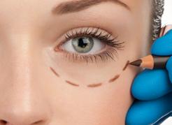 Conheça a Blefaroplastia – cirurgia de pálpebras