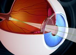 instituto-de-olhos_blog-cirurgia-de-retina-em-vitreo