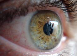 instituto-de-olhos_blog-como-evitar-olho-seco