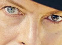 instituto-de-olhos-limongi_Blog-hetercromia-diferenca-da-cor-dos-olhos