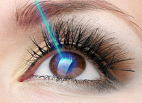 IOL - Blog - Lasik – Cirurgia de correção ocular a laser (thumb)