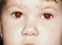 IOL - Blog - Descubra o motivo de sairmos com olhos vermelhos nas fotos (thumb)