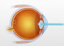 IOL - Blog - Correção Visual a Laser Personalizada para o seu Astigmatismo (thumb)