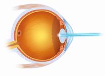 laser-para-retina