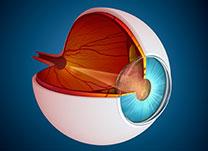 laser_glaucoma