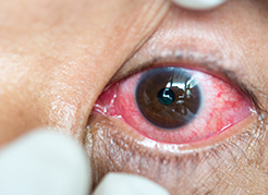 Instituto de Olhos Limongi - Blog - Derrame nos olhos