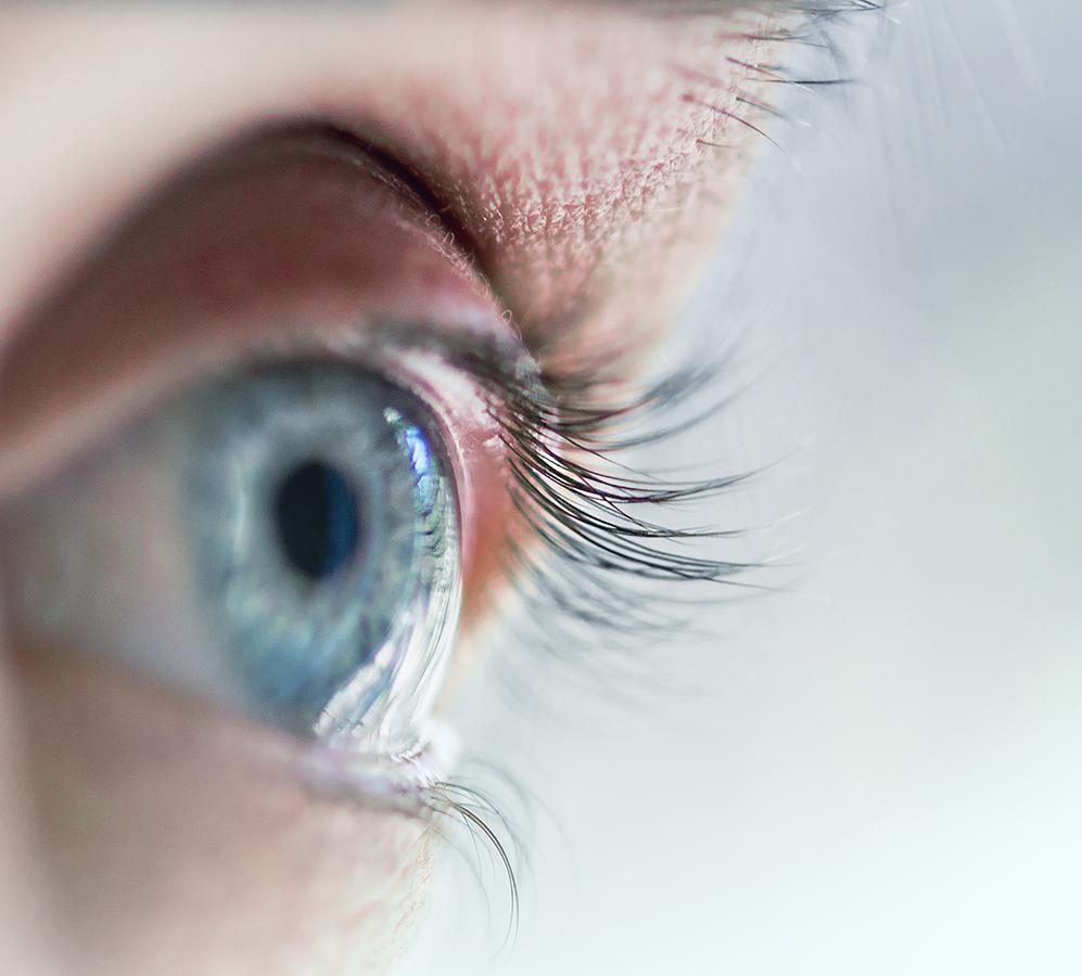 Conheça três mitos sobre o Astigmatismo