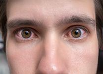 Hospital-de-Olhos-Limongi---Blog---Olho-vermelho,-inflamado-e-seco-(thumb)