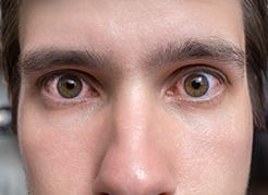 Hospital-de-Olhos-Limongi---Blog---Olho-vermelho,-inflamado-e-seco