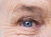 Hospital-de-Olhos-Limongi---Blog---Cuidados-com-a-saúde-ocular-na-terceira-idade-(thumb)