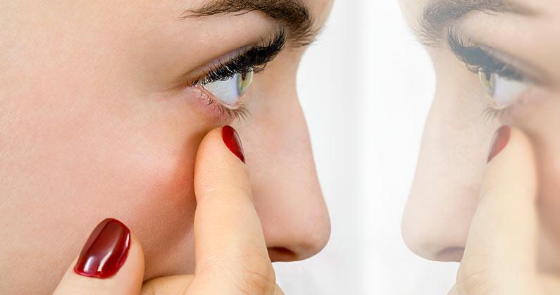 hospital-de-olhos-limongi-blog-e-conjuntivite