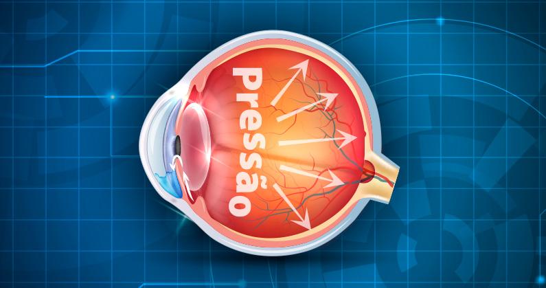 Hospital-de-Olhos-Limongi---Posts---quais-sao-as-causas-do-glaucoma-blog