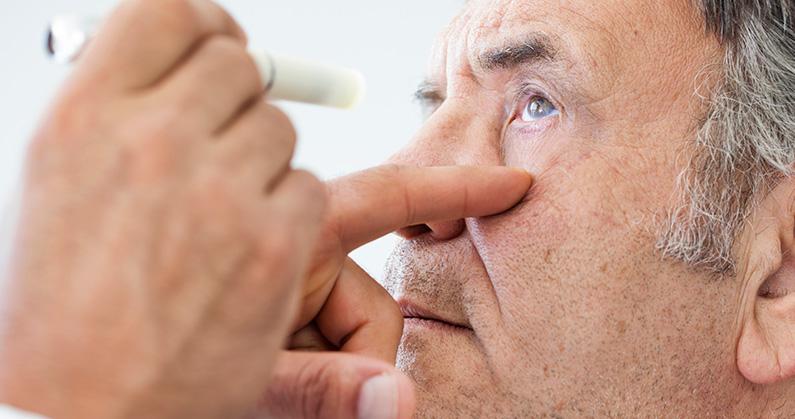 hospital-de-olhos-limongi-blog-É-possível-prevenir-o-glaucoma