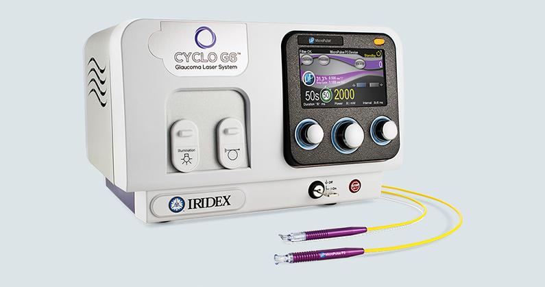 Hospital de Olhos Limongi - Blog - Laser Para glaucoma com Cyclo G6