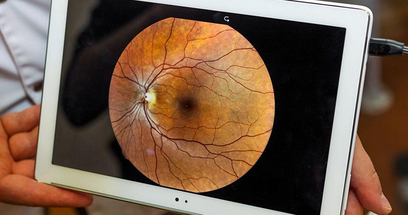 Hospital de Olhos Limongi - Blog - 3 sinais que indicam doenças na retina